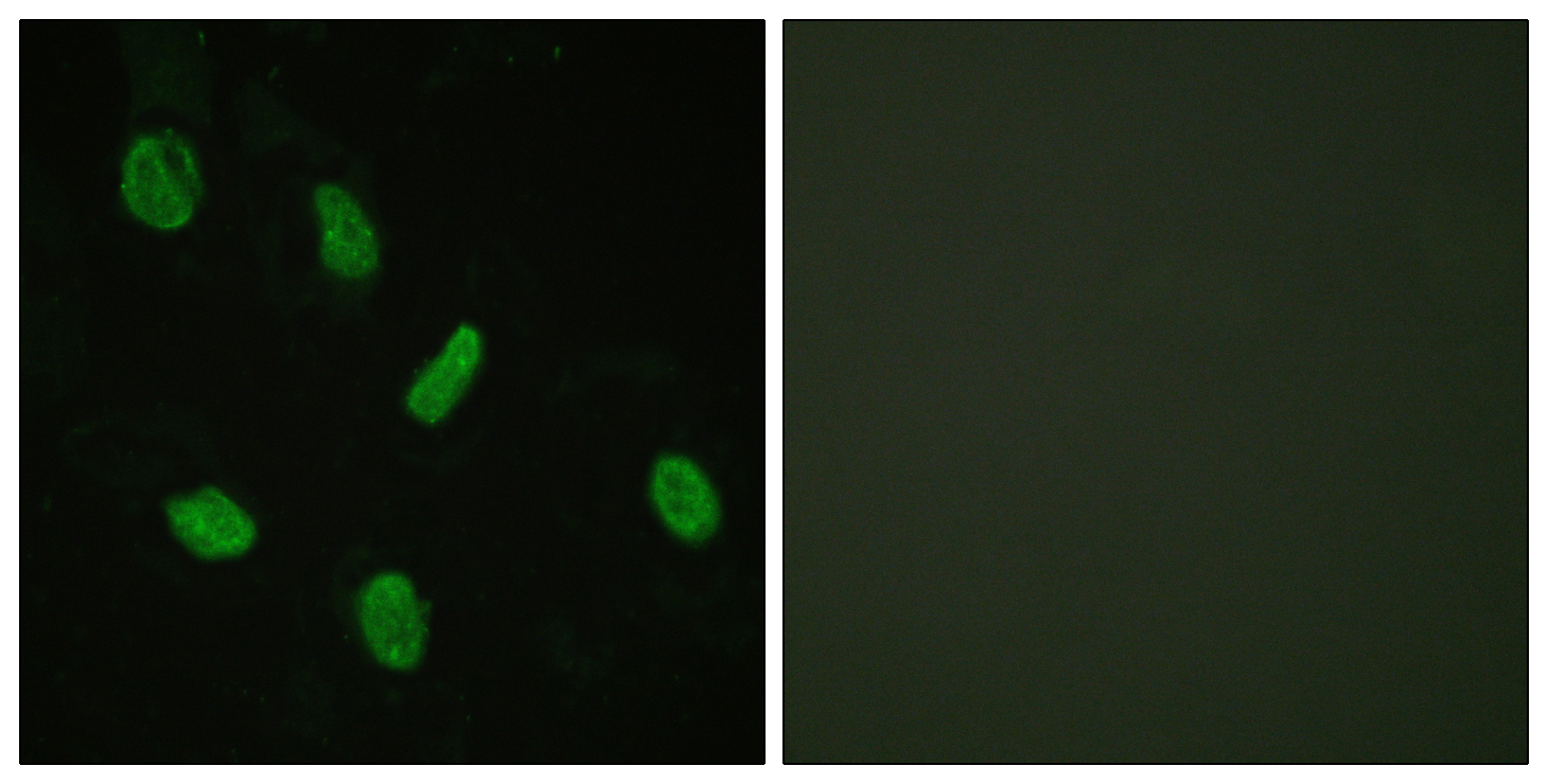 AR Antibody (OAAF00927) in HeLa cells using Immunofluorescence