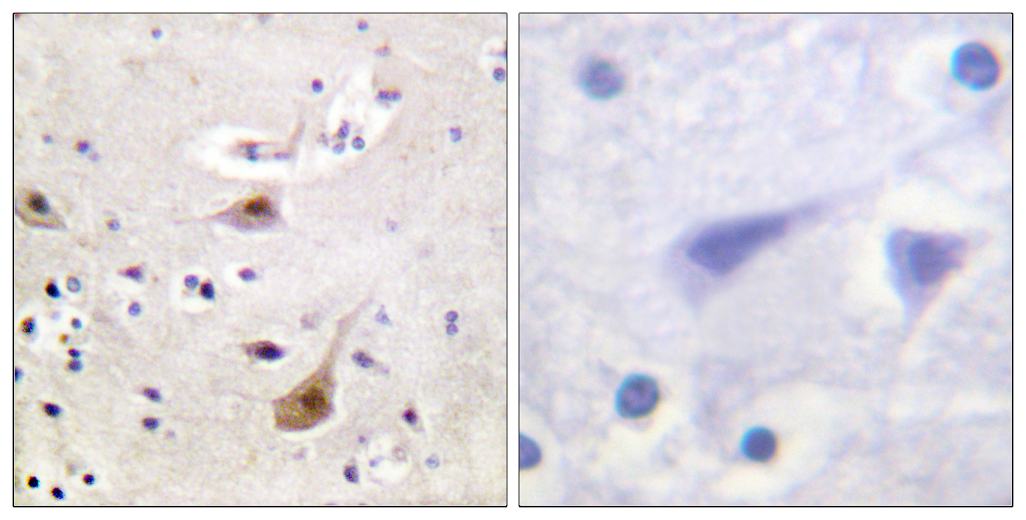 AR Antibody (OAAF00927) in Human brain cells using Immunohistochemistry