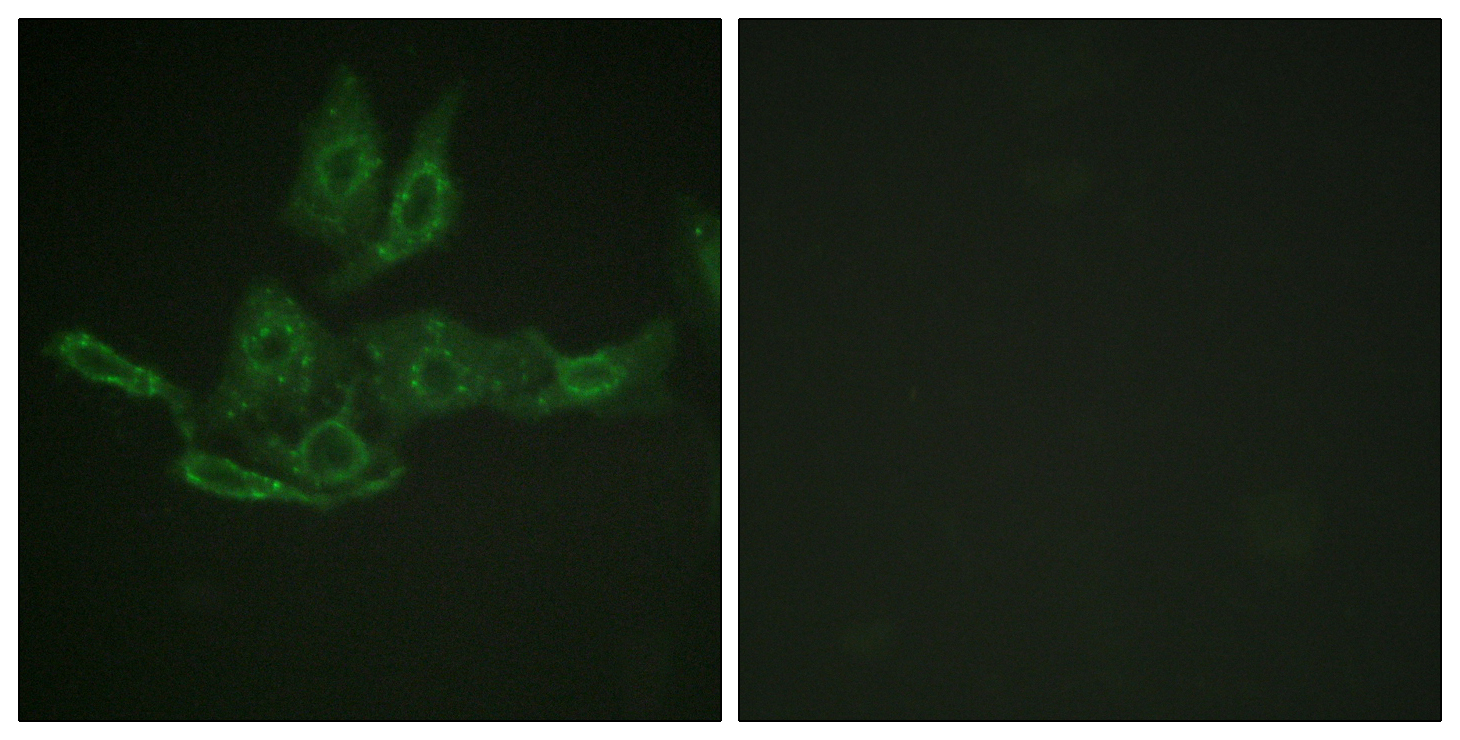 BCL2 Antibody (OAAF00934) in HepG2 cells using Immunofluorescence