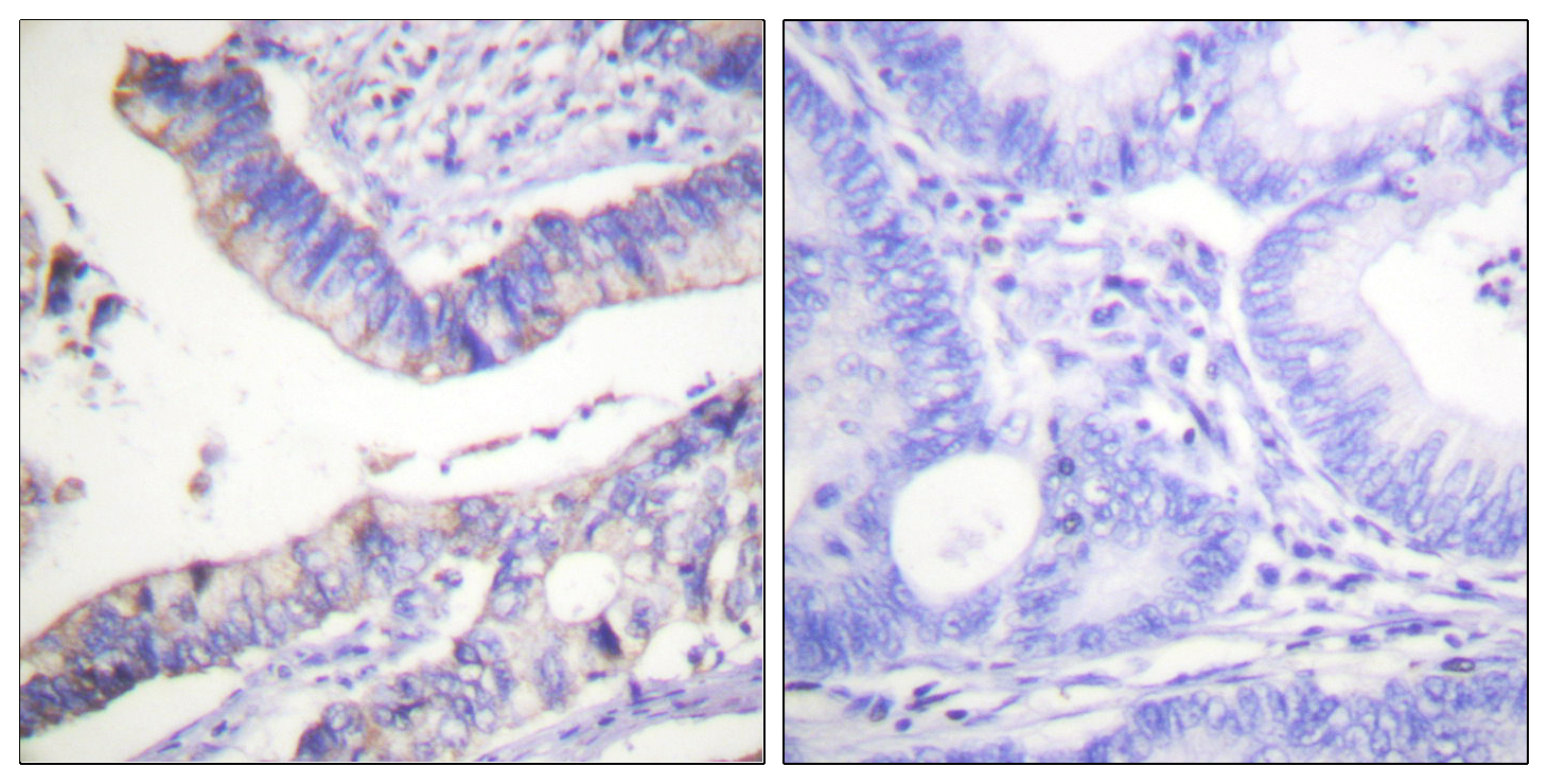 BCL2 Antibody (OAAF00934) in Human colon carcinoma cells using Immunohistochemistry