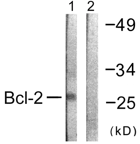 BCL2 Antibody (OAAF00934) in K562 cells using Western Blot