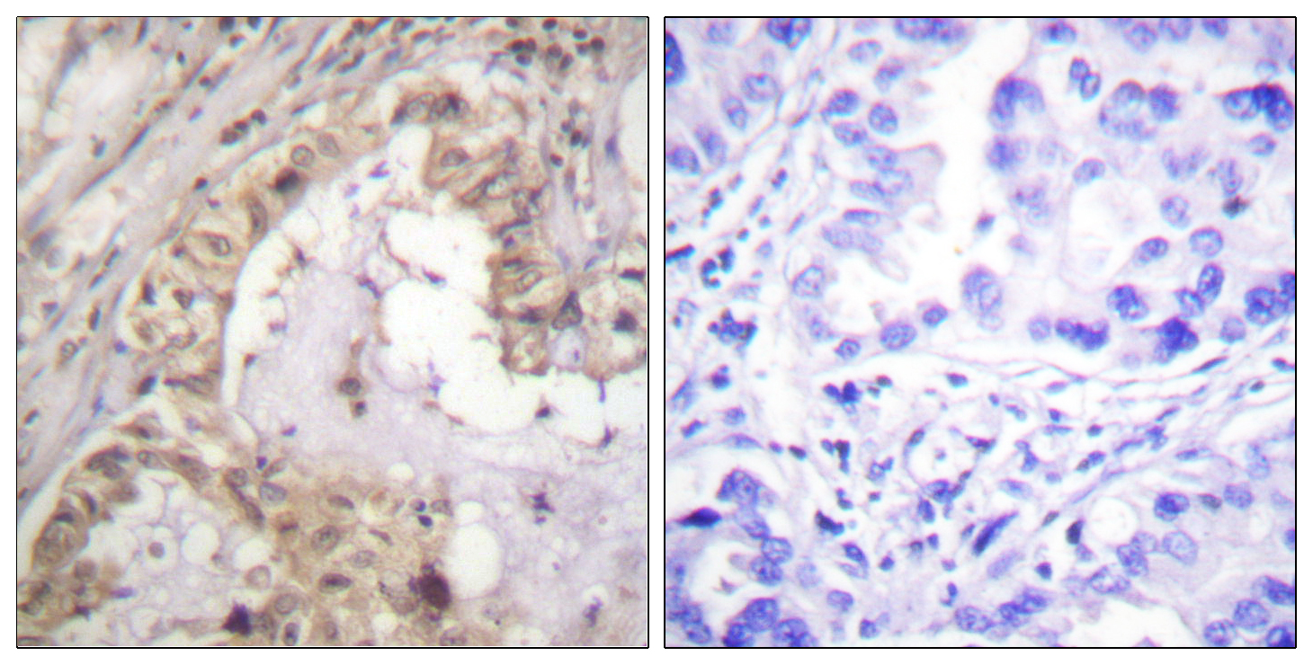 BCL2L1 Antibody (OAAF00935) in Human lung carcinoma cells using Immunohistochemistry