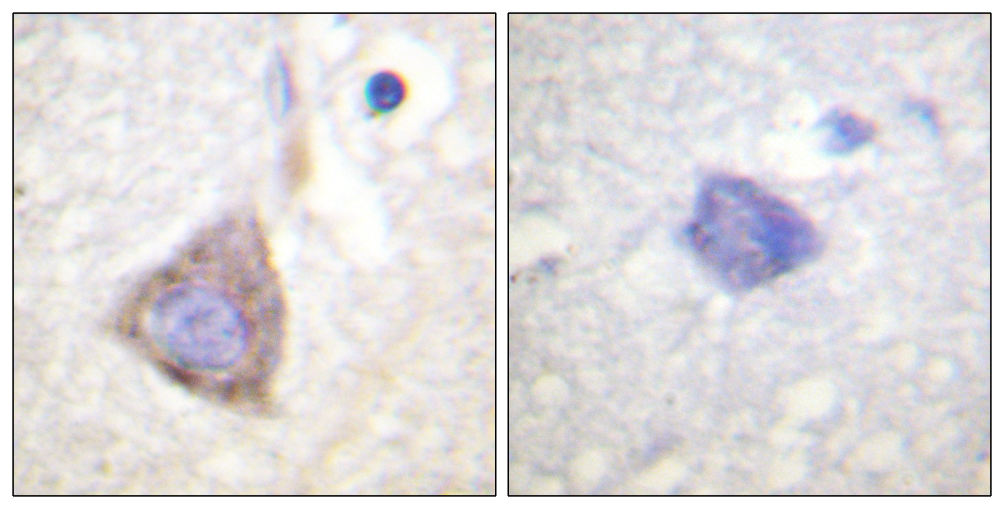 BCR Antibody (OAAF00936) in Human brain cells using Immunohistochemistry