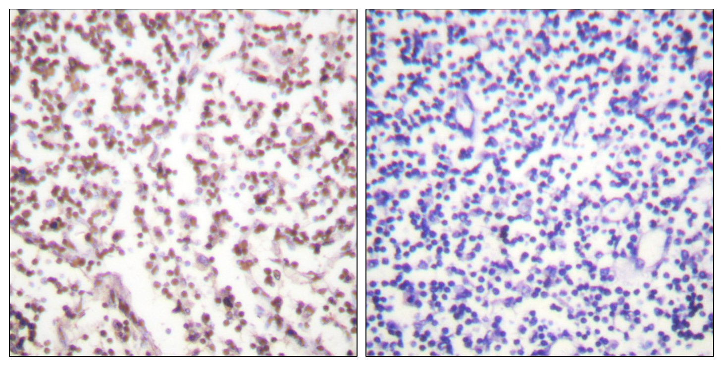 BLM Antibody (OAAF00937) in Human lymph node cells using Immunohistochemistry
