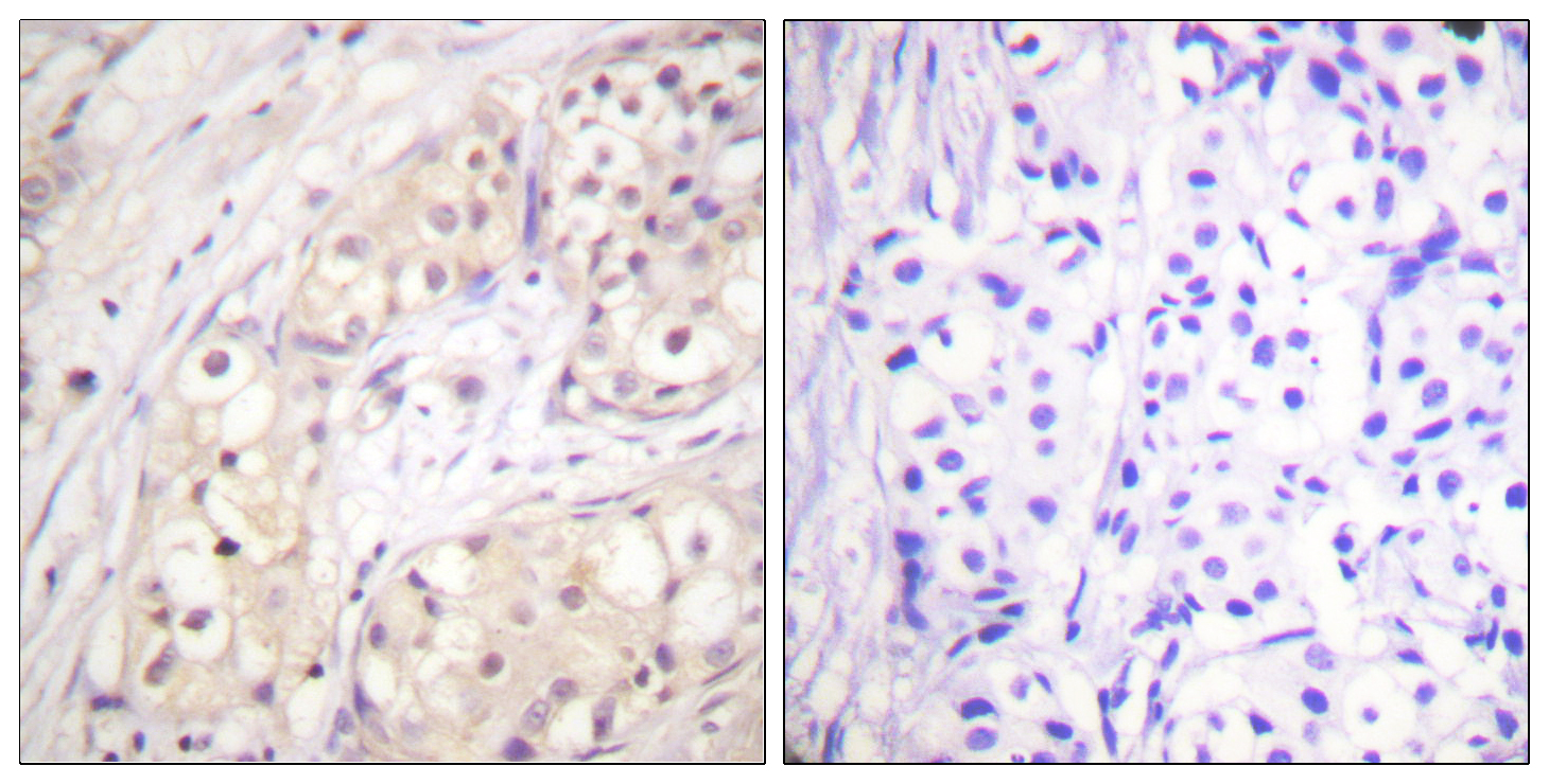 BRAF Antibody (OAAF00938) in Human breast carcinoma cells using Immunohistochemistry