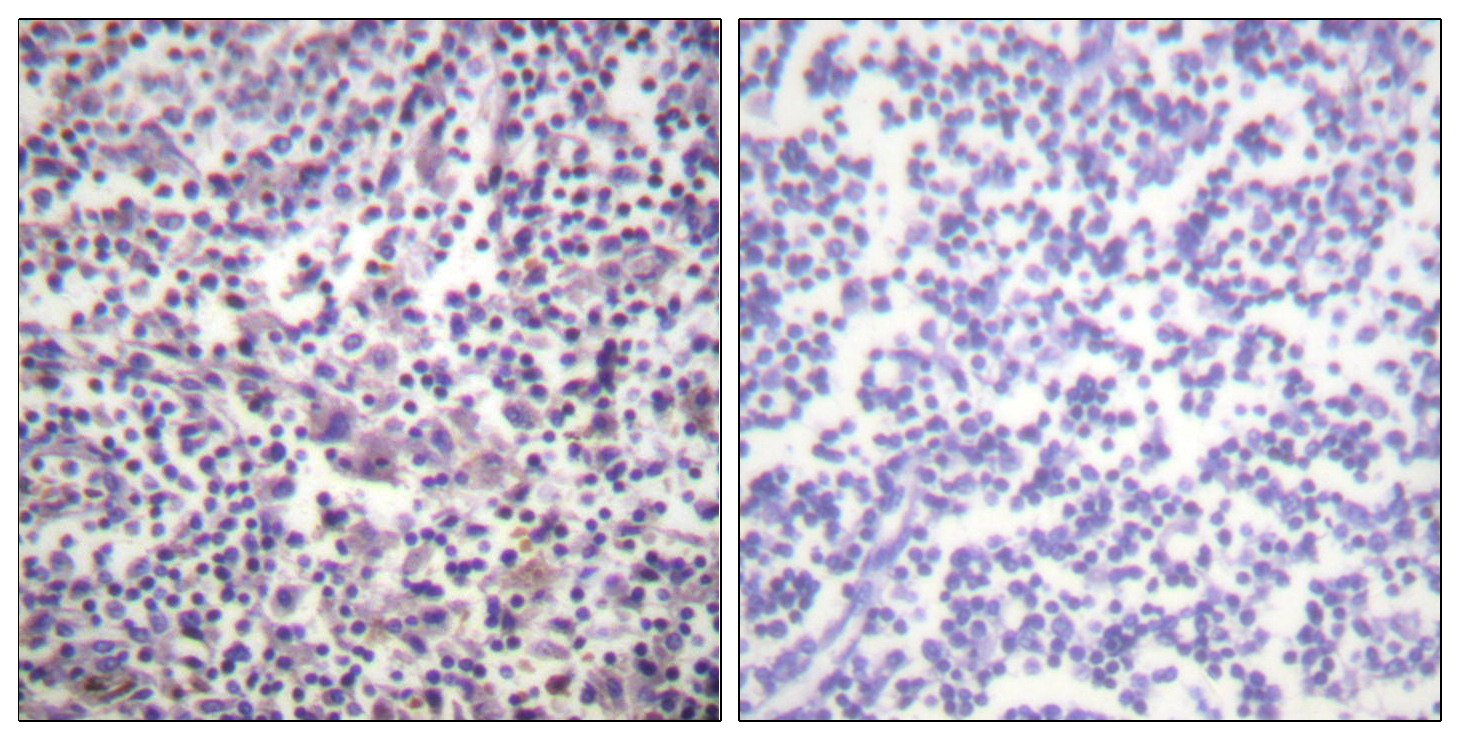 BRAF Antibody (OAAF00939) in Human lymph node cells using Immunohistochemistry