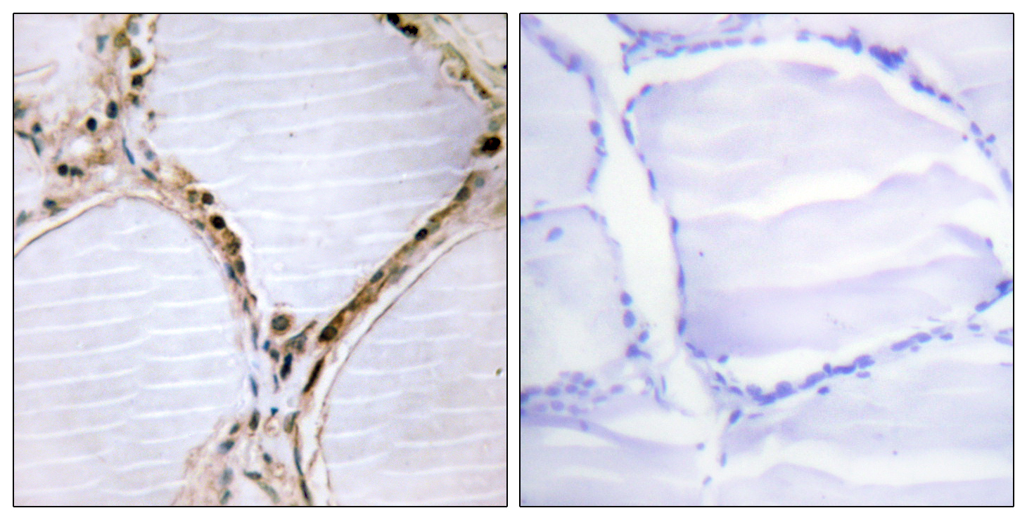 BMX Antibody (OAAF00942) in Human thyroid gland cells using Immunohistochemistry
