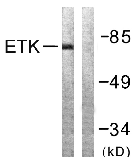 BMX Antibody (OAAF00942) in A549 cells using Western Blot