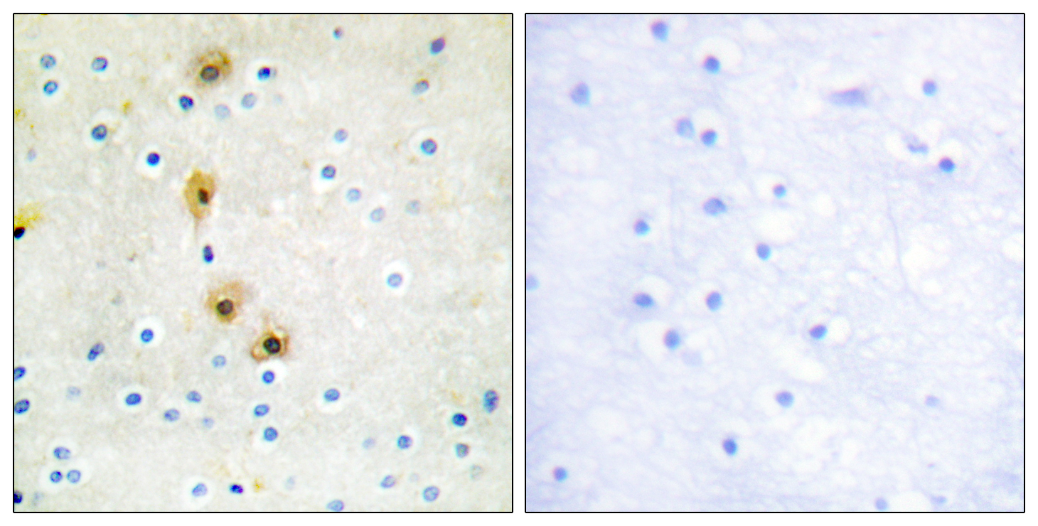 AKT1 Antibody (OAAF00965) in Human breast carcinoma cells using Immunohistochemistry