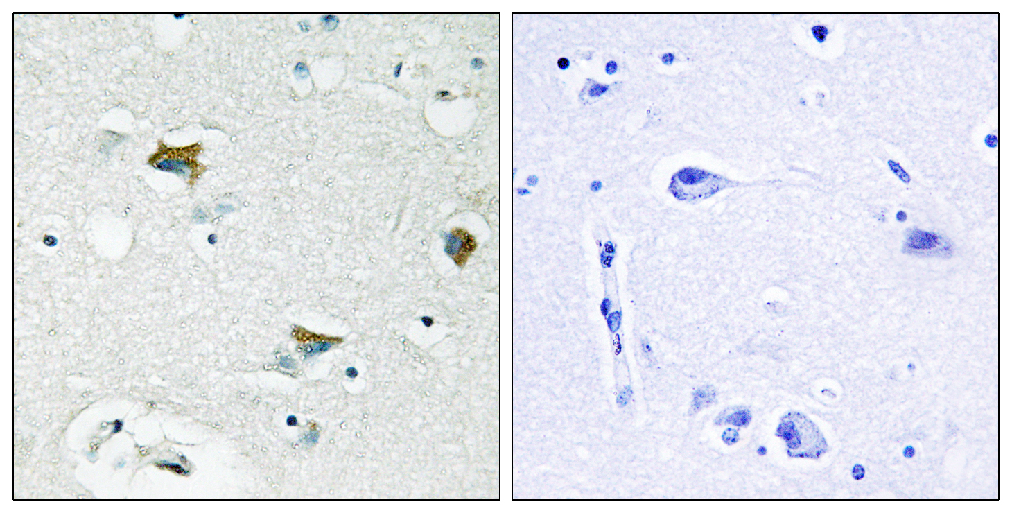 BAD Antibody (OAAF00968) in Human breast carcinoma cells using Immunohistochemistry
