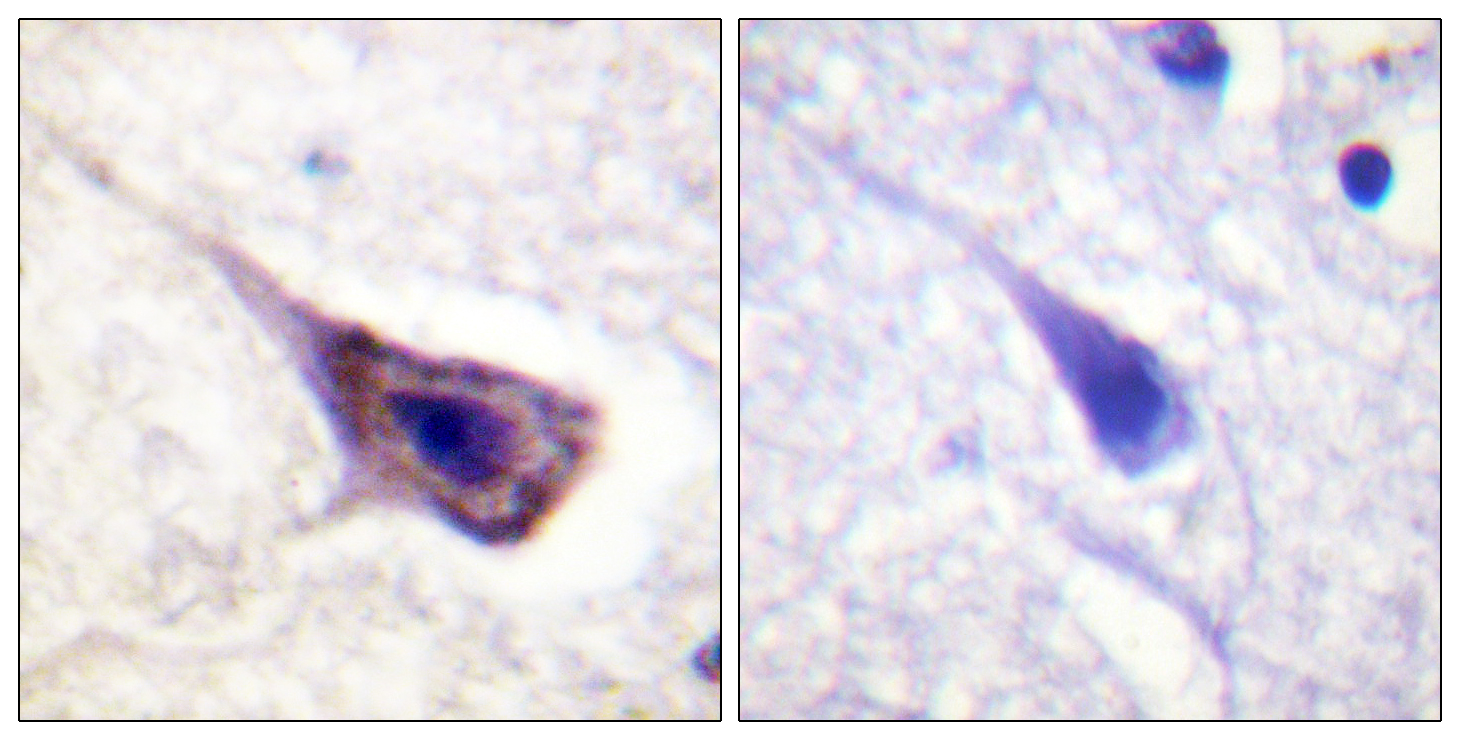 BAD Antibody (OAAF00969) in Human brain cells using Immunohistochemistry
