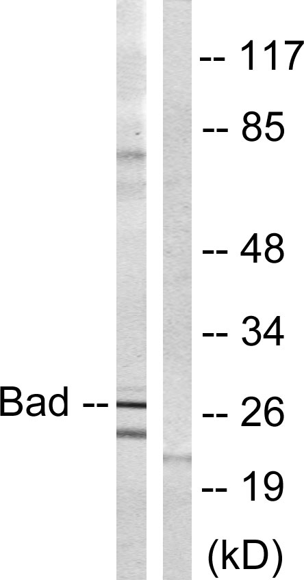 BAD Antibody (OAAF00969) in Mouse liver cells using Western Blot