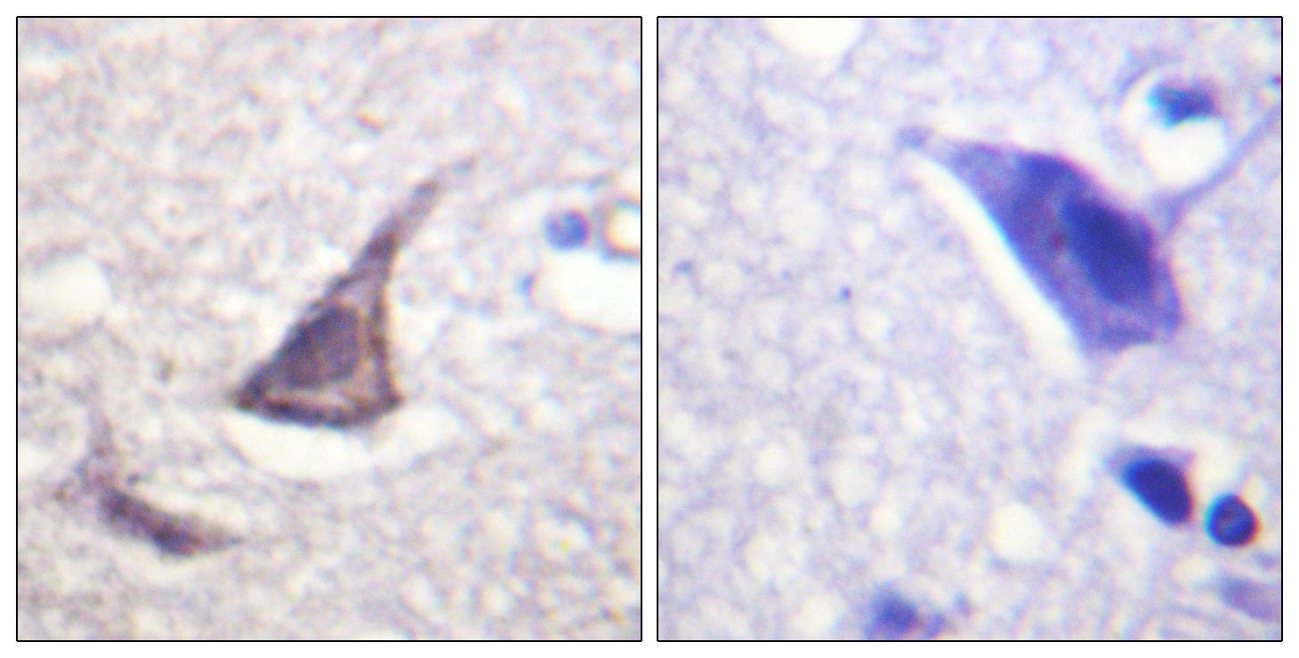 CASR Antibody (OAAF00973) in Human brain cells using Immunohistochemistry