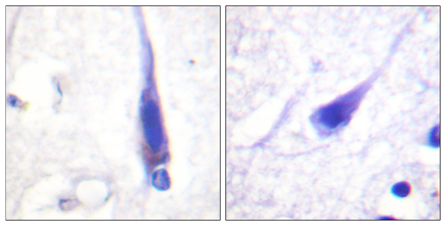 CALM1 Antibody (OAAF00974) in Human brain cells using Immunohistochemistry