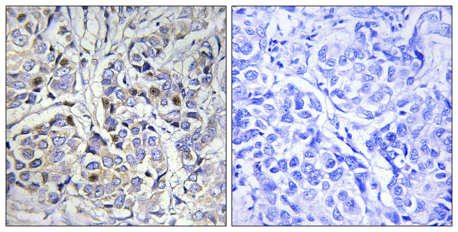 CENPA Antibody (OAAF00998) in Human breast carcinoma cells using Immunohistochemistry