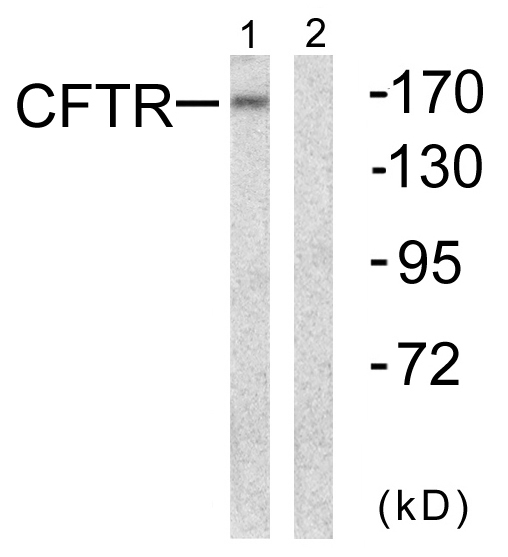 CFTR Antibody (OAAF00999) in NIH-3T3 cells using Western Blot