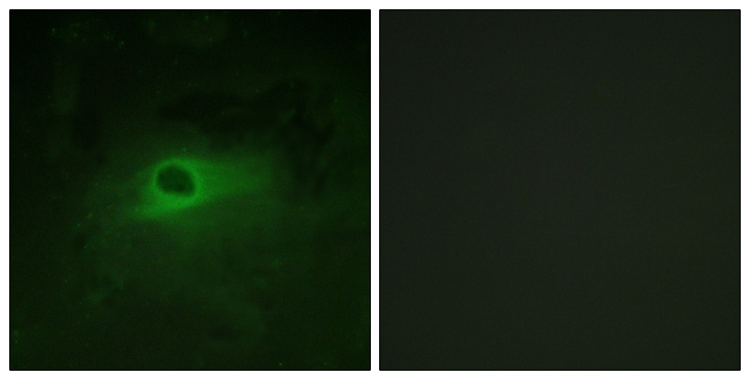 CSF1R Antibody (OAAF01008) in HeLa cells using Immunofluorescence