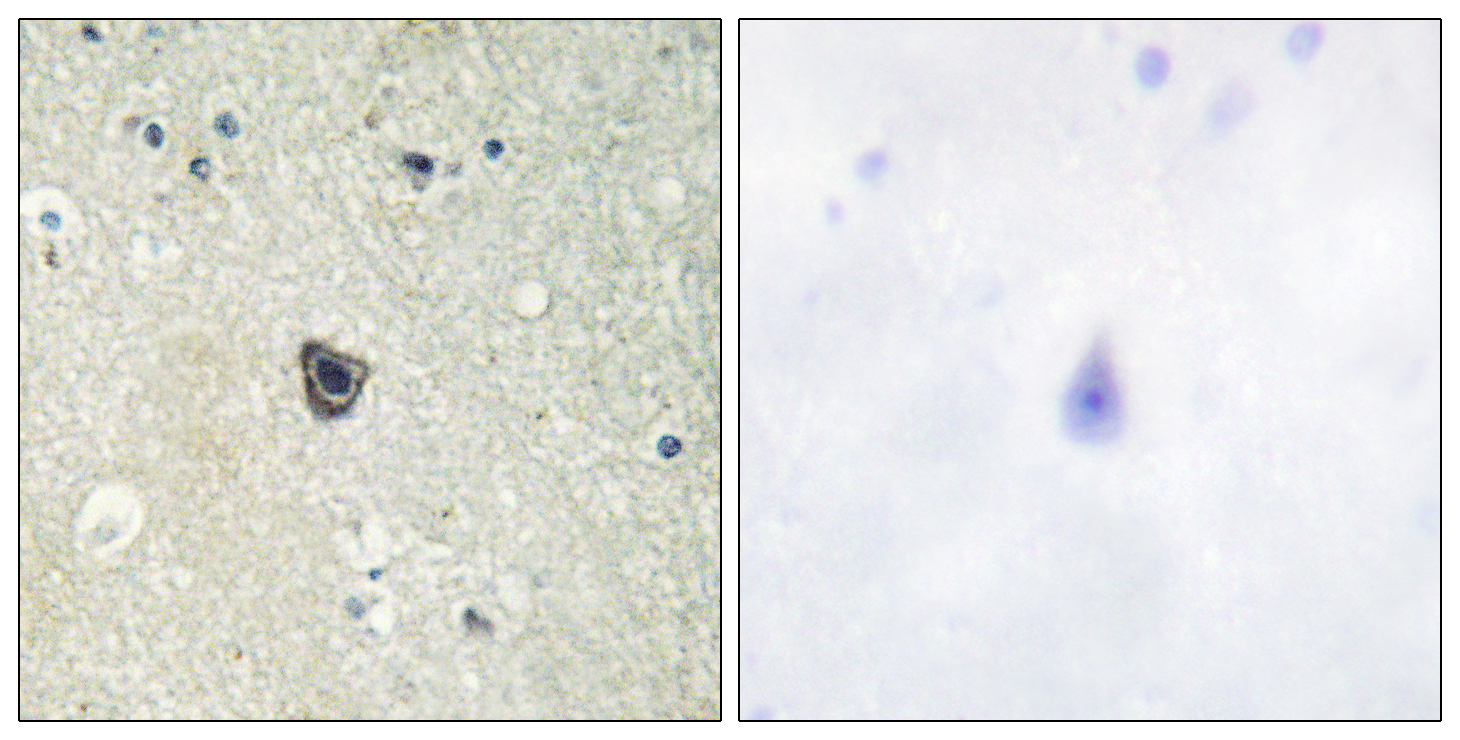 CSF1R Antibody (OAAF01008) in Human brain cells using Immunohistochemistry