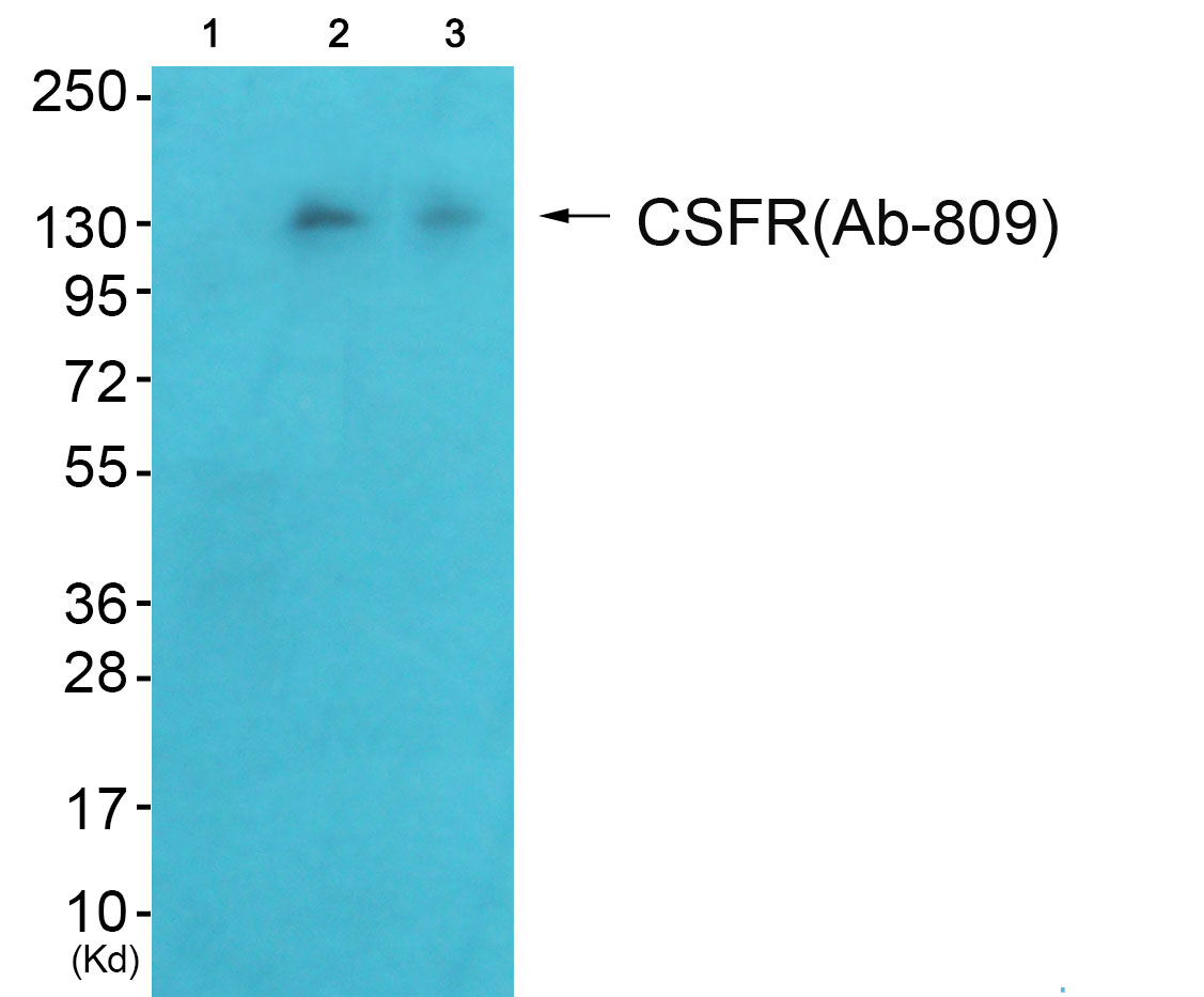 CSF1R Antibody (OAAF01008) in HeLa, HepG2 cells using Western Blot