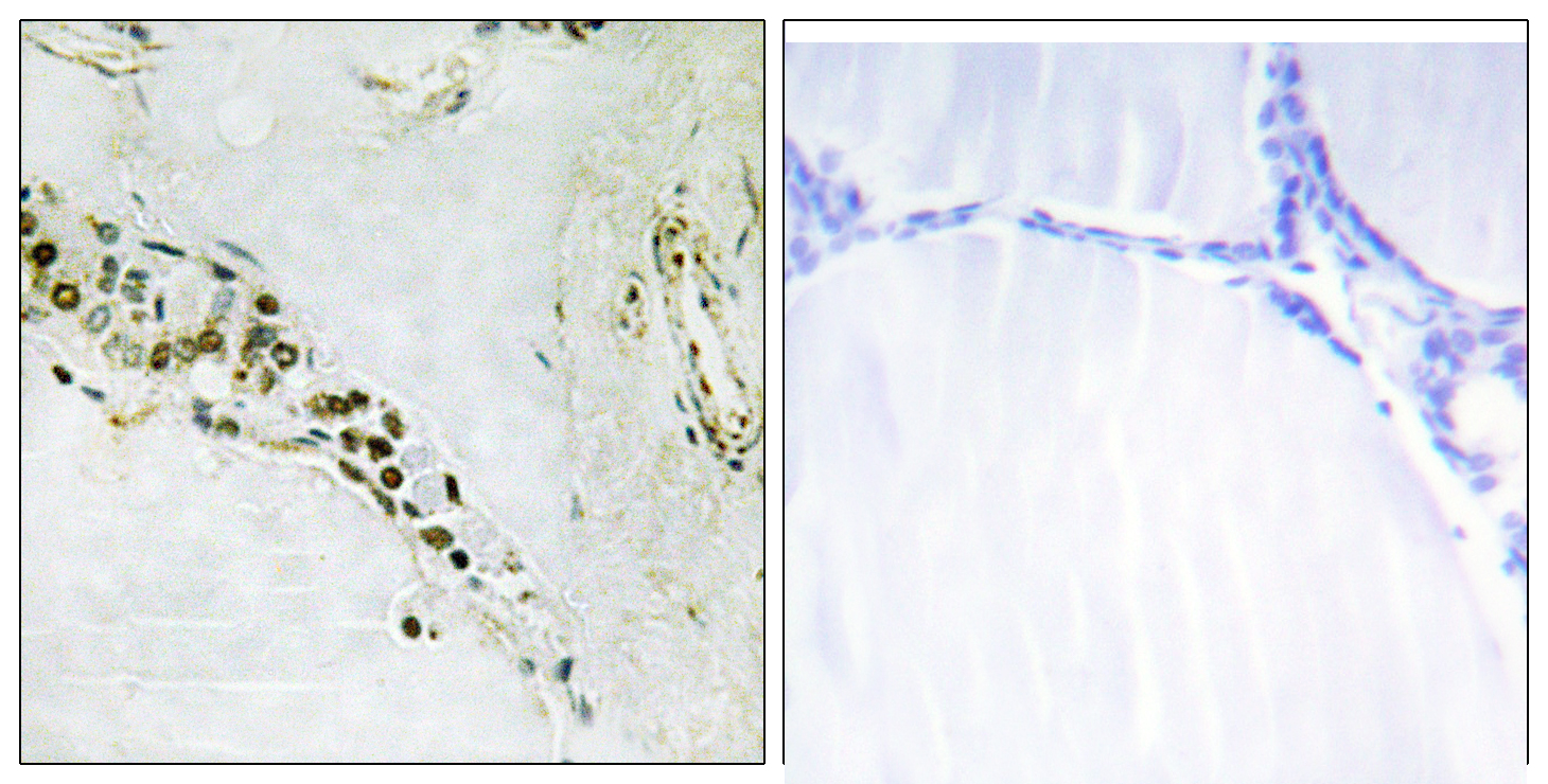 CCNE2 Antibody (OAAF01011) in Human thyroid gland cells using Immunohistochemistry