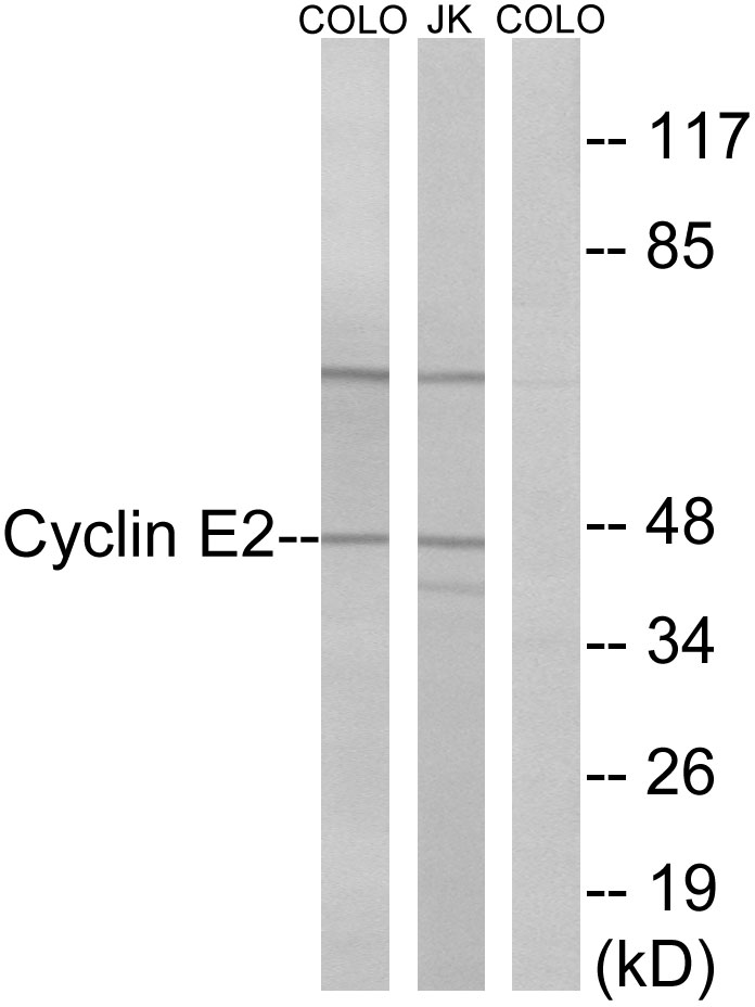CCNE2 Antibody (OAAF01011) in COLO, Jurkat cells using Western Blot
