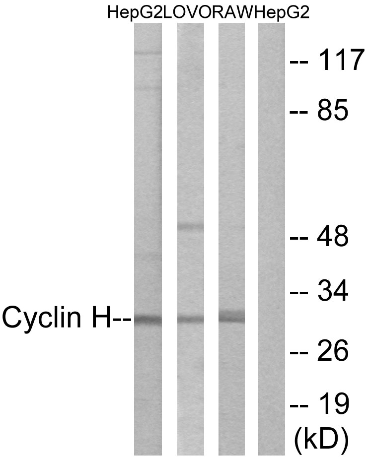 CCNH Antibody (OAAF01012) in K562 cells using Western Blot