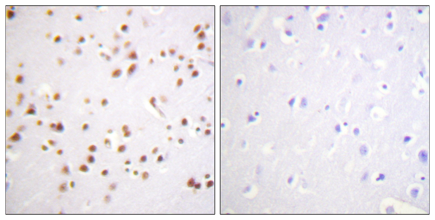 CTNND1 Antibody (OAAF01016) in Human brain cells using Immunohistochemistry
