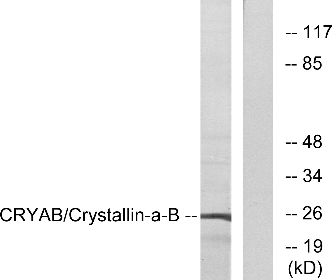CRYAB Antibody (OAAF01018) in 293 cells using Western Blot