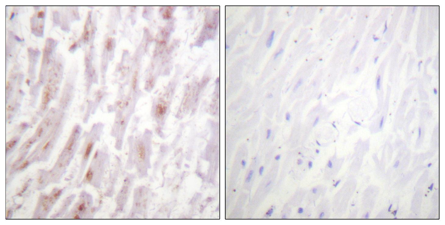 CRYAB Antibody (OAAF01019) in Human heart cells using Immunohistochemistry