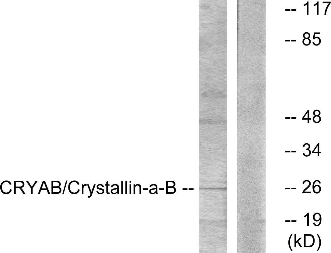 CRYAB Antibody (OAAF01020) in K562 cells using Western Blot