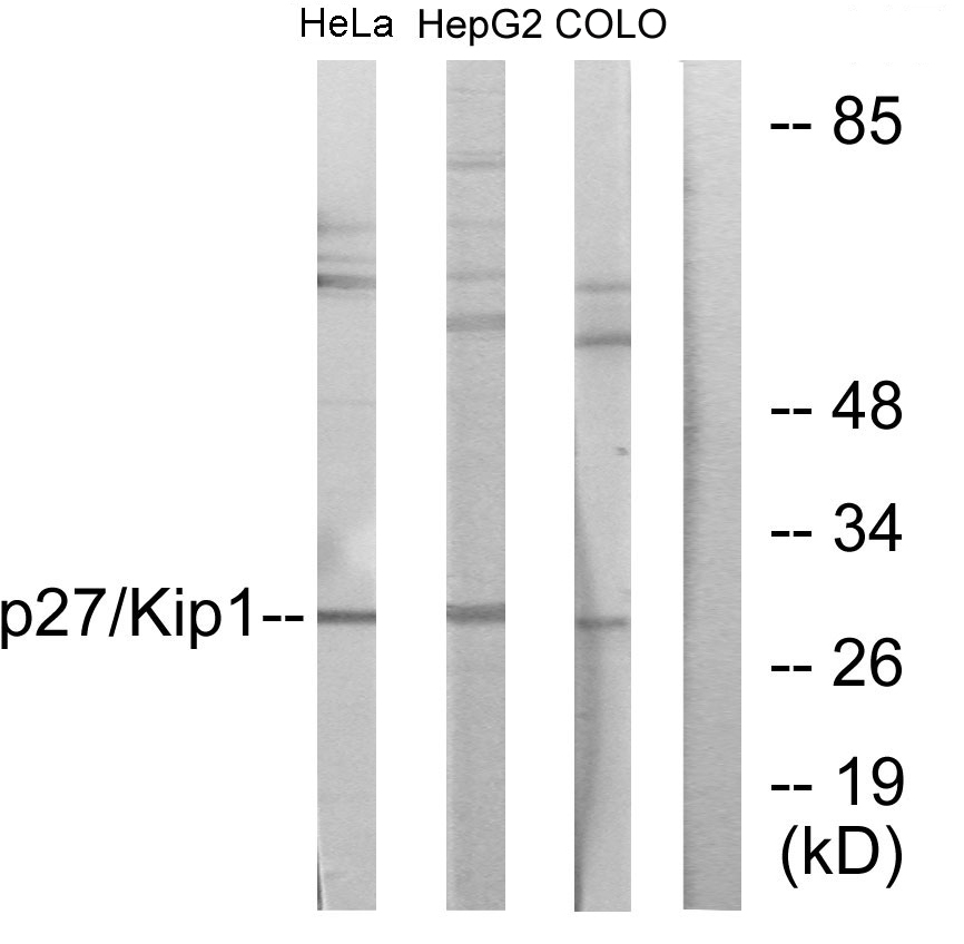 CDKN1B Antibody (OAAF01068) in HeLa, HepG2, COLO205 cells using Western Blot