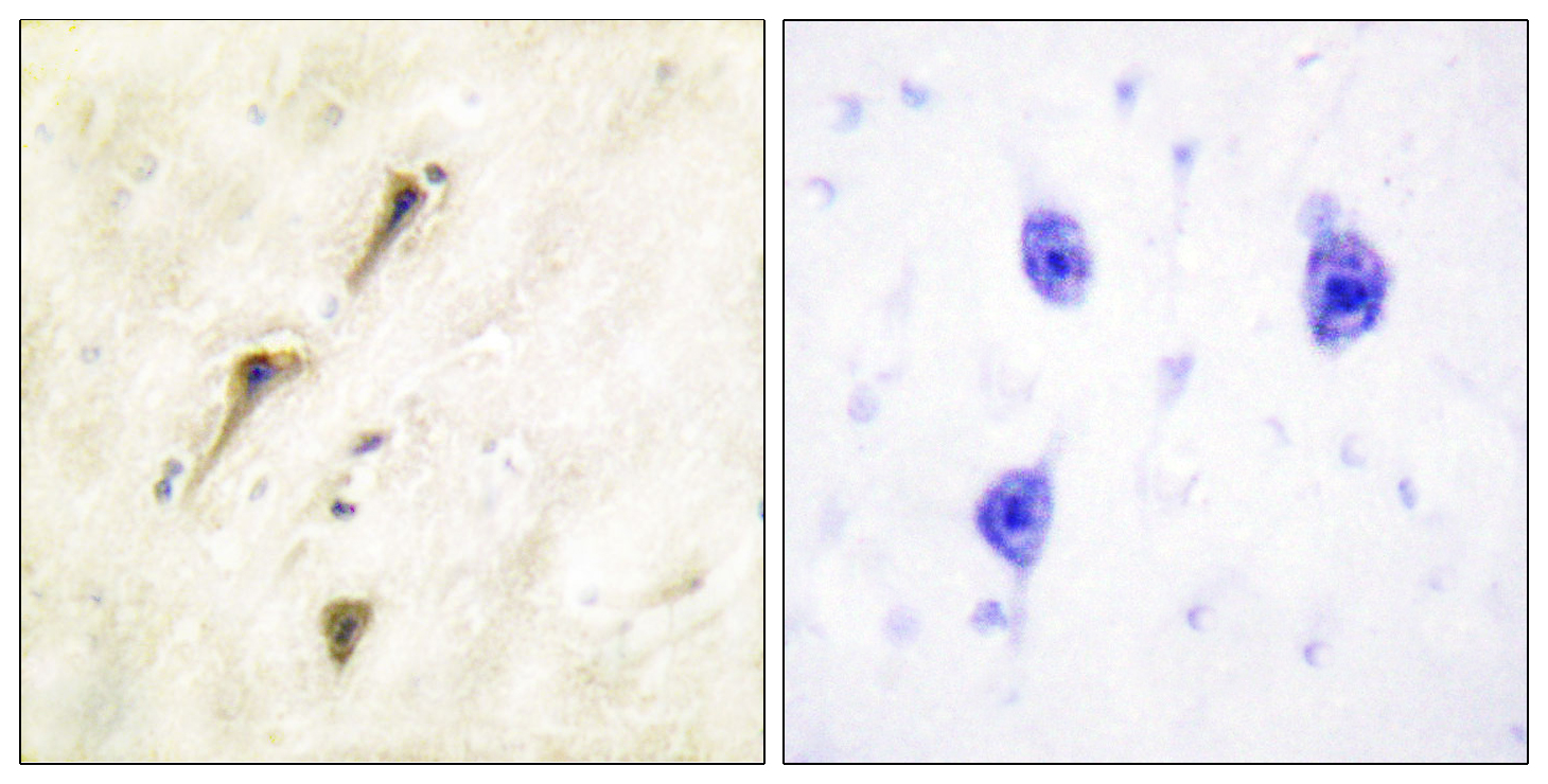 ANAPC1 Antibody (OAAF01096) in Human breast carcinoma cells using Immunohistochemistry