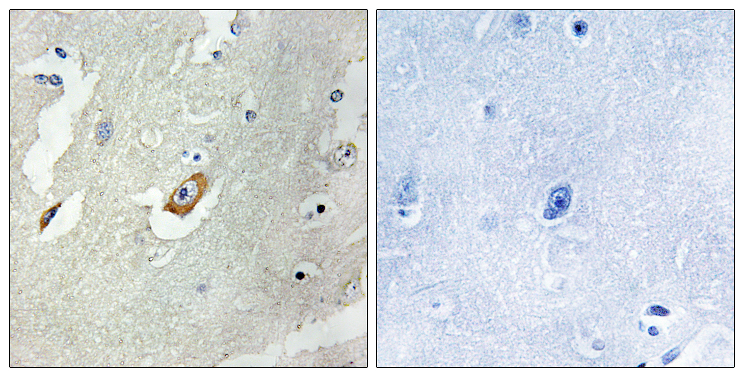 CDC16 Antibody (OAAF01101) in Human breast carcinoma cells using Immunohistochemistry