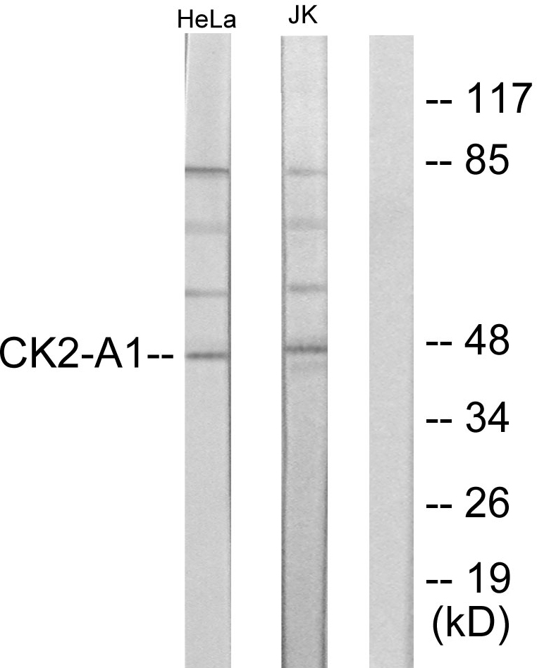 CSNK2A1 Antibody (OAAF01196) in HeLa, Jurkat cells using Western Blot