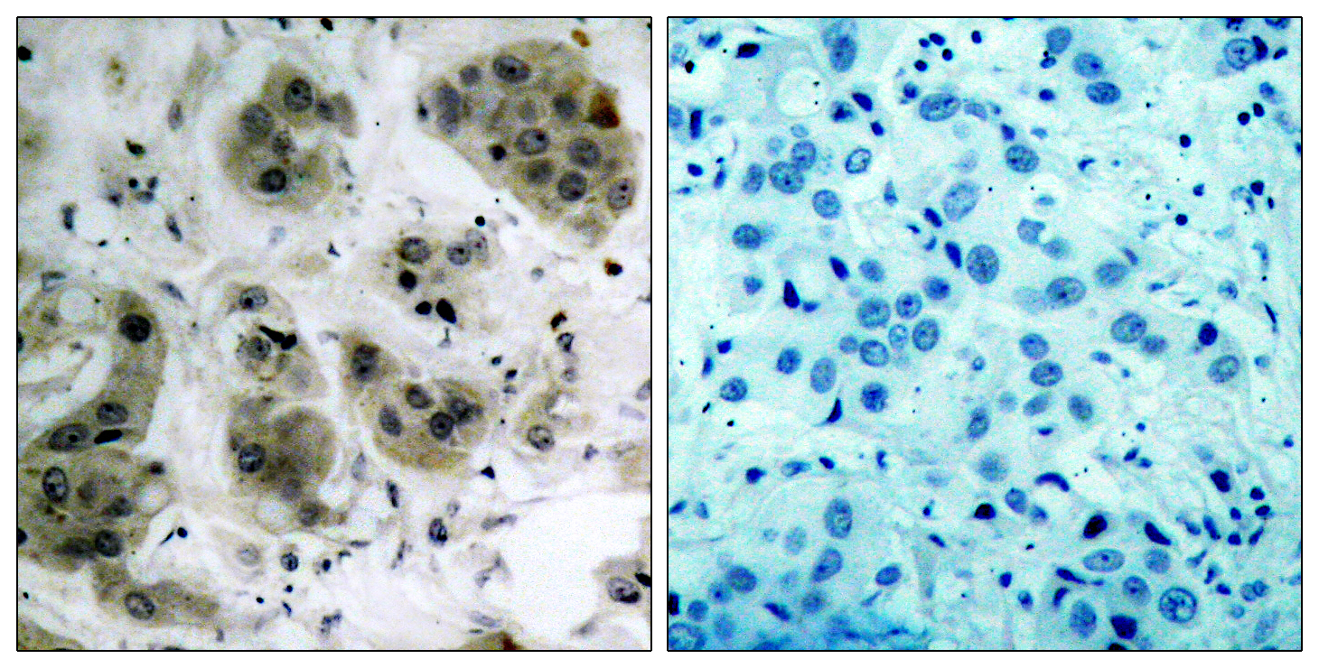 AKT1 Antibody (OAAF01230) in Human breast carcinoma cells using Immunohistochemistry