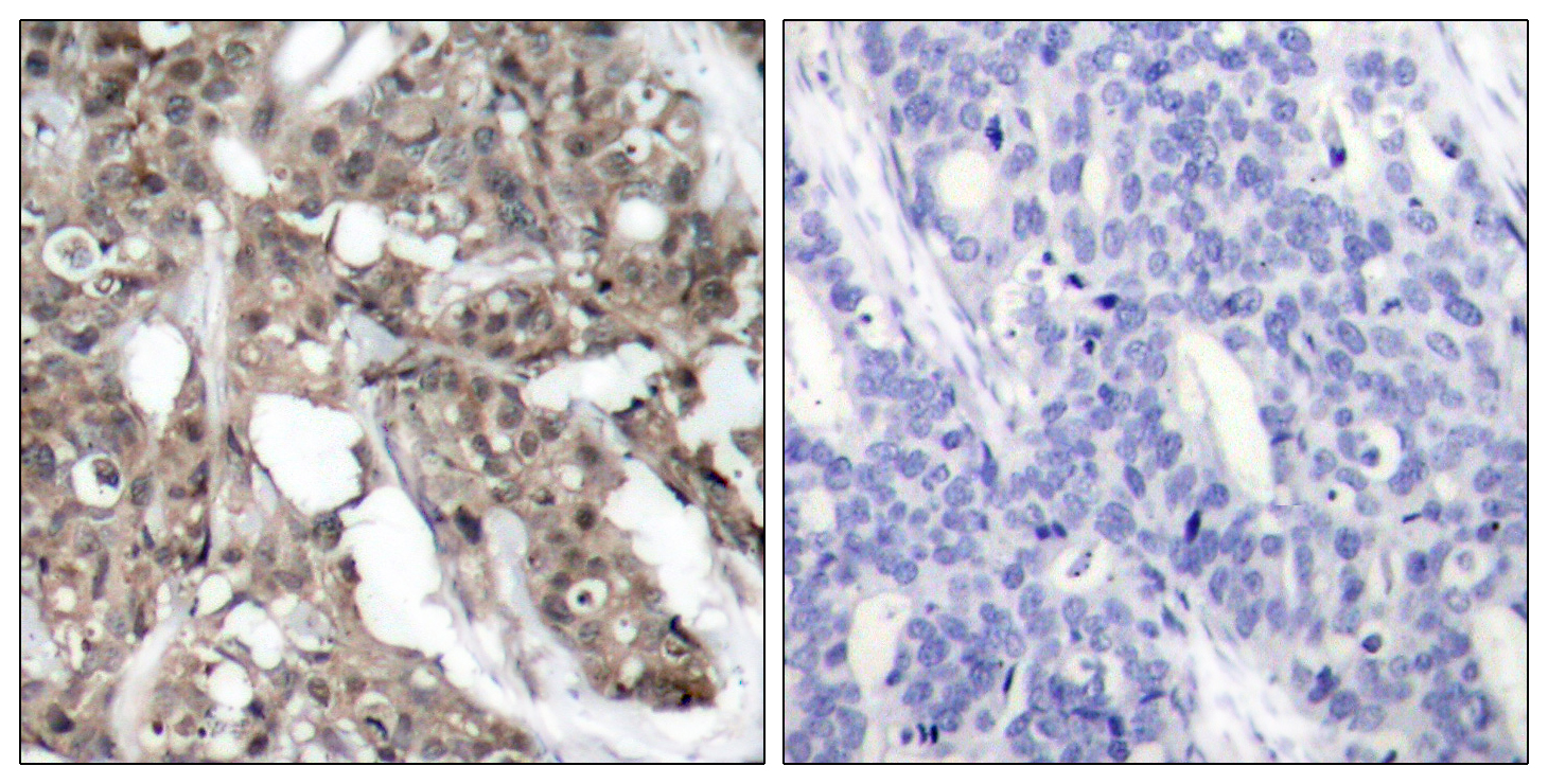 AKT1 Antibody (OAAF01231) in Human breast carcinoma cells using Immunohistochemistry