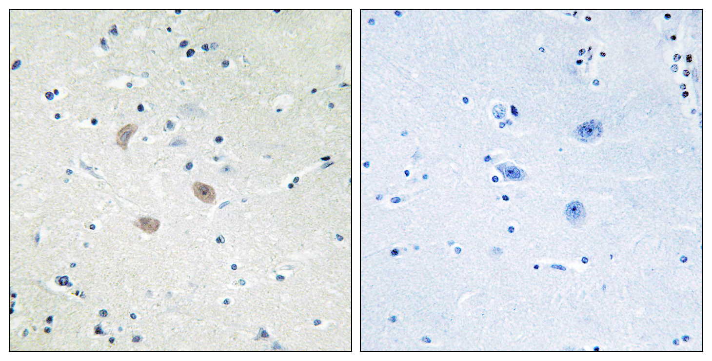 Akt2 Antibody (OAAF01232) in Human brain cells using Immunohistochemistry