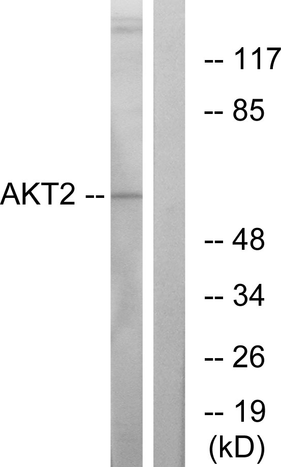Akt2 Antibody (OAAF01232) in A2780 cells using Western Blot