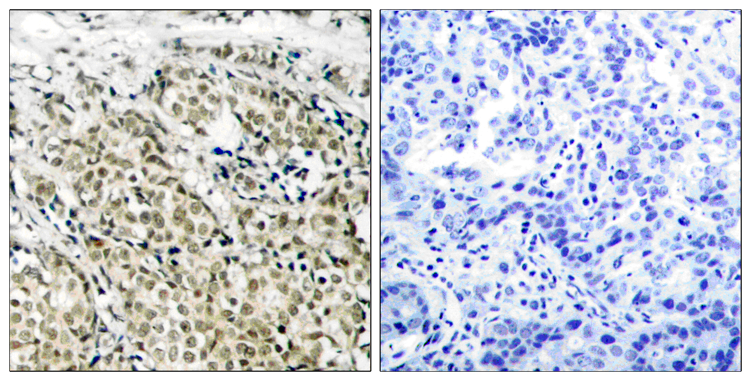 AR Antibody (OAAF01234) in Human prostate carcinoma cells using Immunohistochemistry