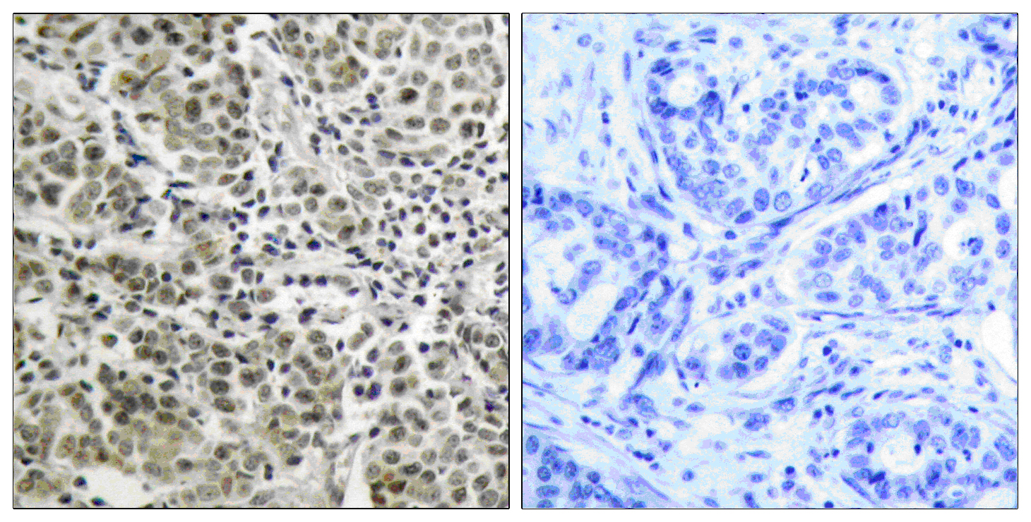 AR Antibody (OAAF01235) in Human prostate carcinoma cells using Immunohistochemistry