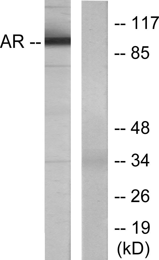 AR Antibody (OAAF01235) in LOVO cells using Western Blot