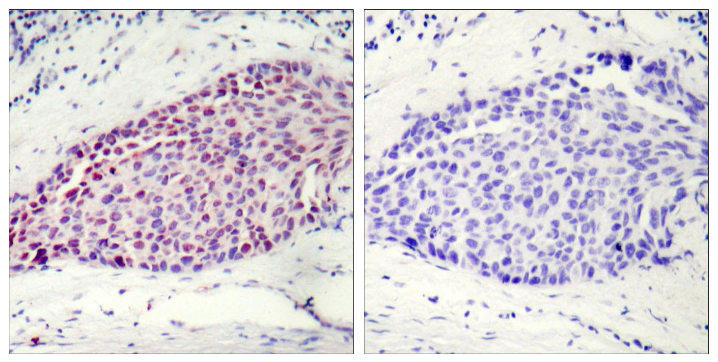 ATF2 Antibody (OAAF01238) in Human breast carcinoma cells using Immunohistochemistry