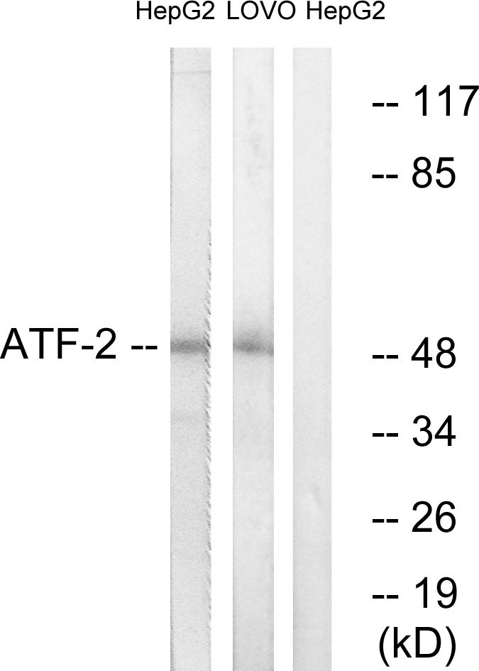 ATF2 Antibody (OAAF01239) in HepG2, LOVO cells using Western Blot
