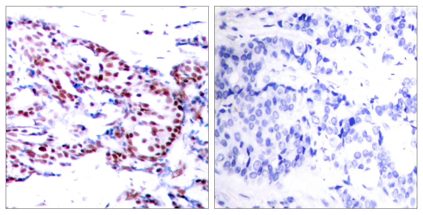 ATF2 Antibody (OAAF01240) in Human breast carcinoma cells using Immunohistochemistry