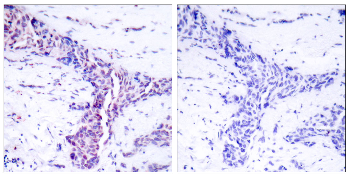 ATF2 Antibody (OAAF01241) in Human breast carcinoma cells using Immunohistochemistry
