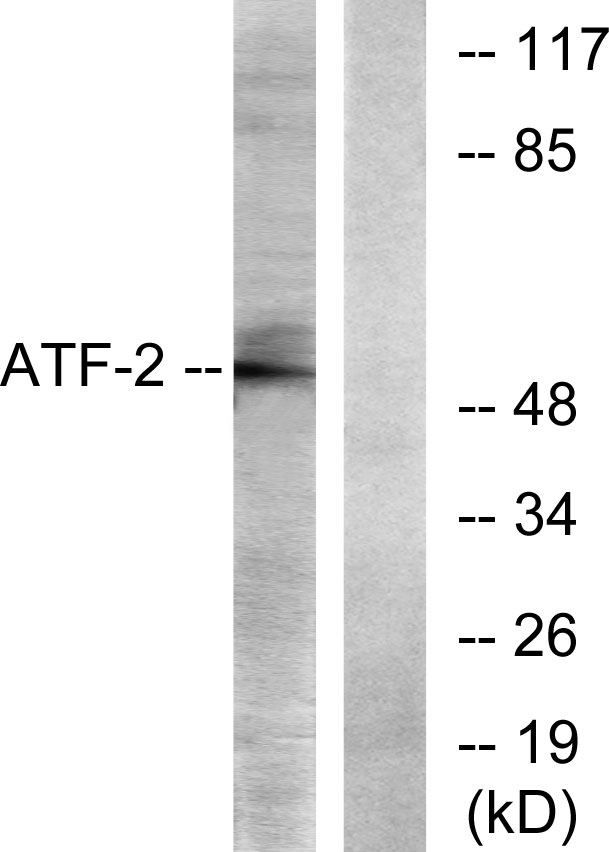 ATF2 Antibody (OAAF01241) in LOVO cells using Western Blot