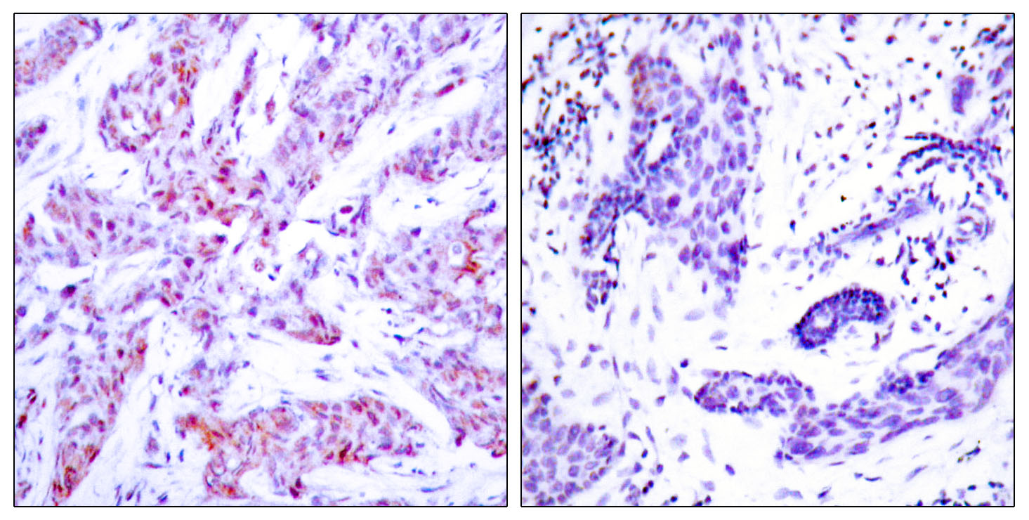 ATF4 Antibody (OAAF01242) in Human breast carcinoma cells using Immunohistochemistry