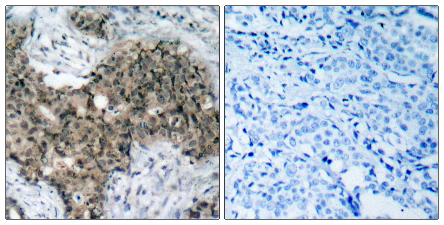 ATM Antibody (OAAF01243) in Human breast carcinoma cells using Immunohistochemistry