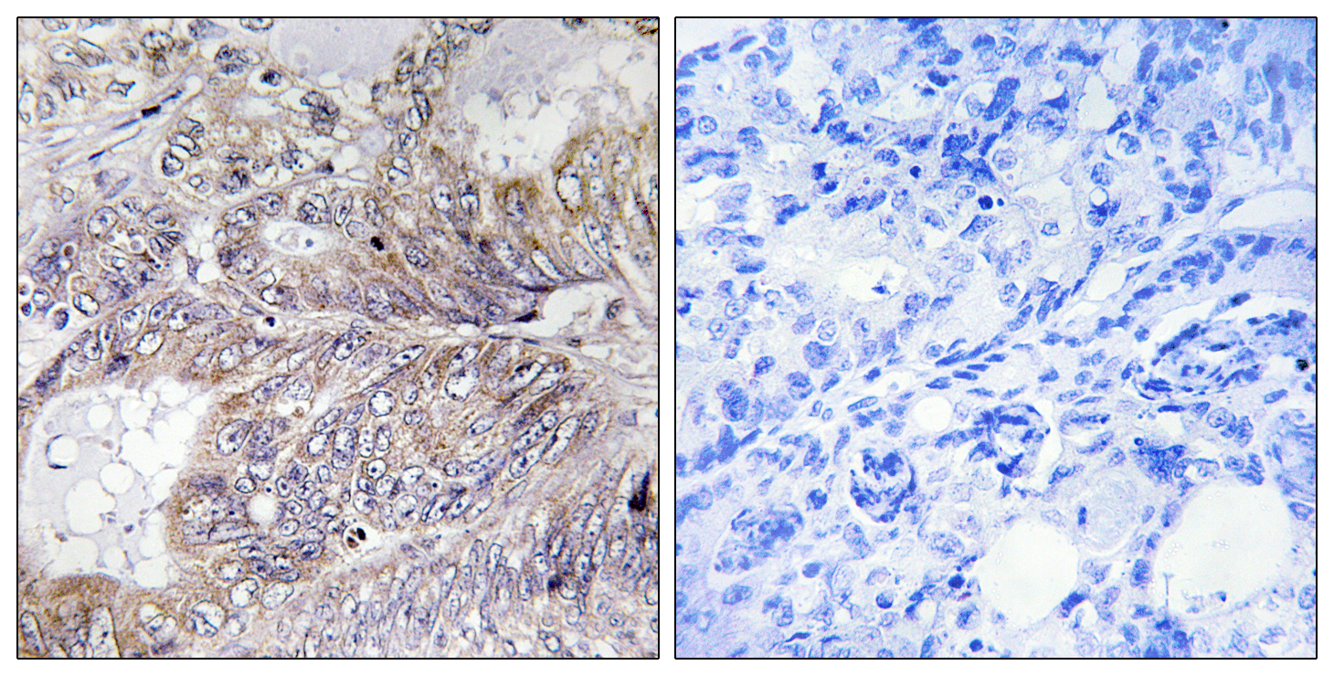 BAD Antibody (OAAF01244) in Human breast carcinoma cells using Immunohistochemistry