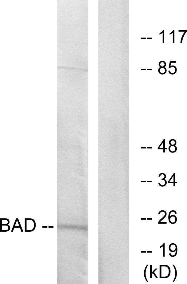 BAD Antibody (OAAF01244) in 293 cells using Western Blot
